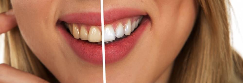 Avoir un tel sourire n'est pas aussi simple que ça, il demande une bonne hygiène orale, tout en commençant par le nettoyage quotidien des dents avec la brosse et le dentifrice approprié, nettoyer l'entre dents avec un il dentaire et clôturer avec le rinçage à l'aide d'un bain de bouche. Cela aide aussi à protéger les dents contre l'acide produit à partir des plaques de bactéries. Sinon, ça va se transformer en taches jaunes sur la dent, ce qu'on appelle le tartre ou le calcaire dentaire.