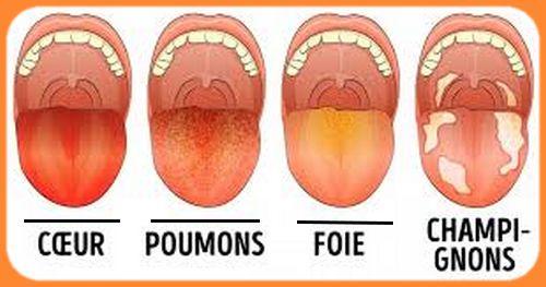 maladies de la langue - Couleurs de la langue