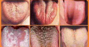 10 Couleurs de la langue, signification de votre santé