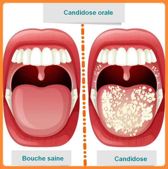Les maladies de la langue photos: Candidose buccale