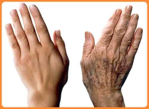 Problèmes qui affects la beauté de la peau