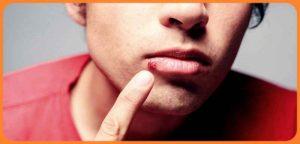 bouton de fièvre - maladies de la bouche les plus frequents - Le bouton de fièvre est une des maladies de la bouche qui est très gênant et très fréquent chez plusieurs personnes, bien que les boutons de fièvre se représentent comme un type d'ulcération... maladies de la bouche