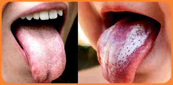 symptômes des champignons de la bouche et de la langue chez les enfants