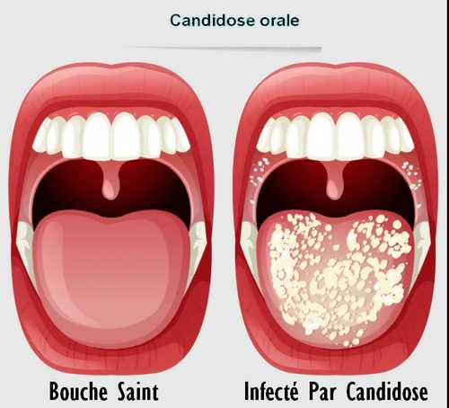 muguet buccal - champignons de la bouche - infection fongique
