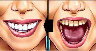Comment blanchir ses dents instantanément? 5 solutions
