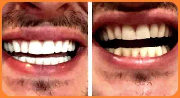 Blanchiment dentaire a l'huile de coco: