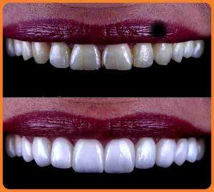 Pour préparer un gel à base de Bicarbonate de soude pour un blanchiment naturel des dents vous devez Mélanger