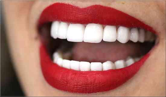 vinaigre de cidre de pomme? #pour blanchir les dents naturellement et avoir un sourire hollywoodien #blanchiment des dents #blanchiment des dents comme les stars #blanchiment naturel des dents