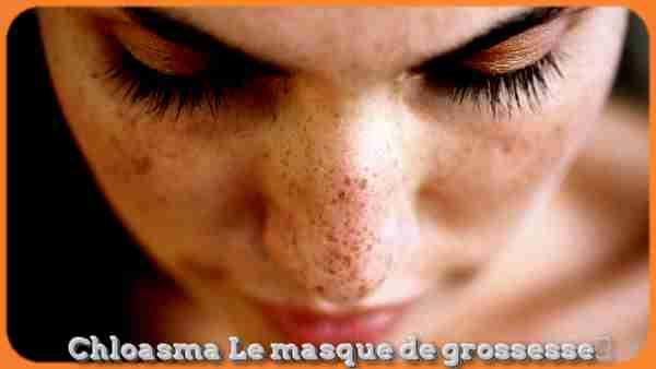 Hyperpigmentation: Chloasma Le masque de grossesse