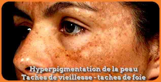 Taches de vieillesse - taches de foie: Ce types d'hyperpigmentation de la peau qui caractérisées sous des taches hépatiques, ces derniers peuvent apparaître à un jeune âge