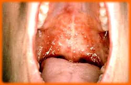 Stomatite - Inflammations de la muqueuse buccale