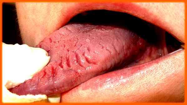 Langue crevassée: Propriétés, causes et 3 traitements
