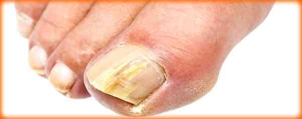 Bicarbonate de soude pour la santé - Les infections à levures de la peau et des ongles