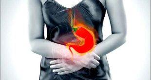 Le reflux gastro œsophagien (RGO)? Les details: