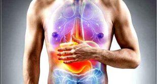Reflux gastrique: Trouble de reflux gastro oesophagien
