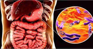 Helicobacter pylori symptômes et traitement naturel