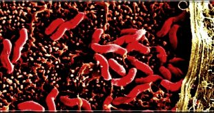 Bactéries Helicobacter pylori: Symptômes, causes, complications