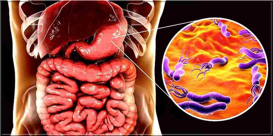Helicobacter pylori symptômes et traitement
