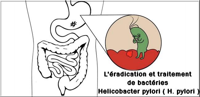 Schéma éradication Helicobacter pylori? nouvelles thérapies?