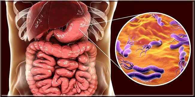 traitement d'infection aux bactéries Helicobacter pylori ( H. pylori )
