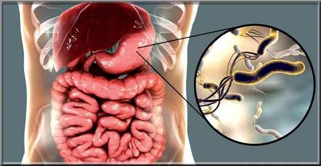 Comment traiter Helicobacter pylori?