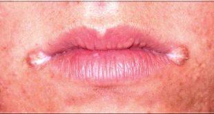 Chéilite angulaire (perlèche): causes et remèdes