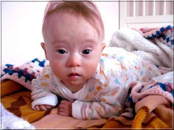 Traitement du syndrome de Down, Trisomie 21 ou Mongolisme