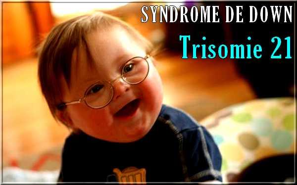 Syndrome de Down - Les causes d'enfant trisomique
