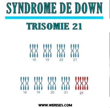 Syndrome de Down - Enfants trisomiques: Comment agir?