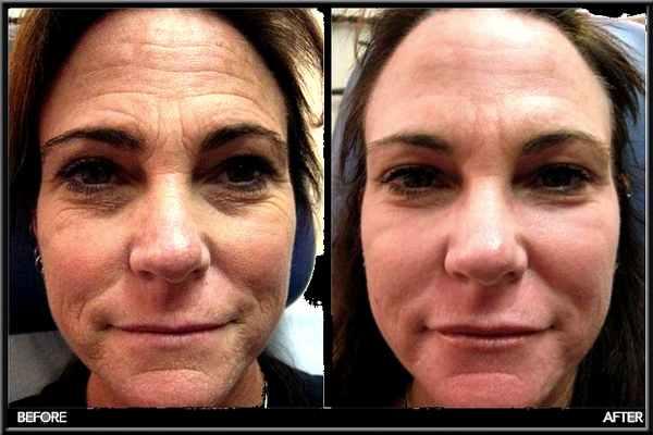 Comment prévenir l'affaissement du visage?